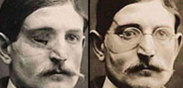 Gurdon Buck é considerado o pai da cirurgia plástica moderna.