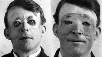 foto historia cirurgia plastica
