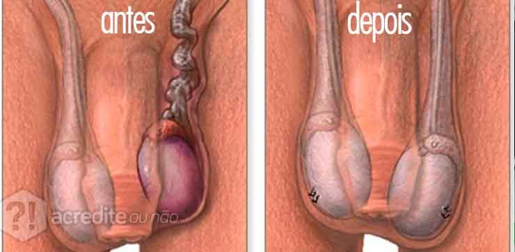 torcao-testicular