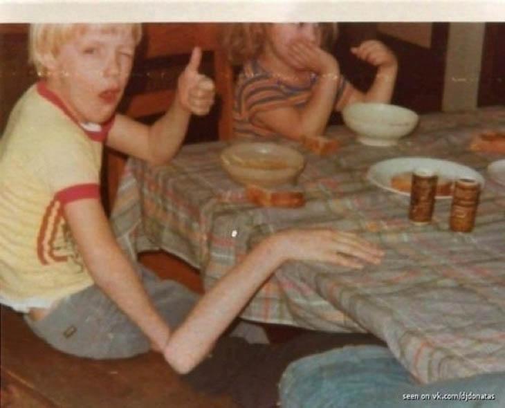menino braço longo