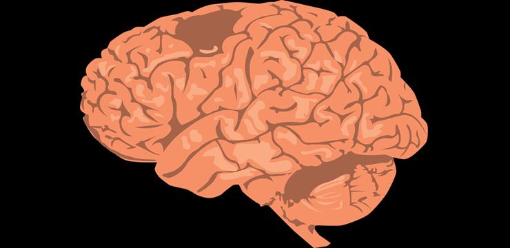 brain-cerebro