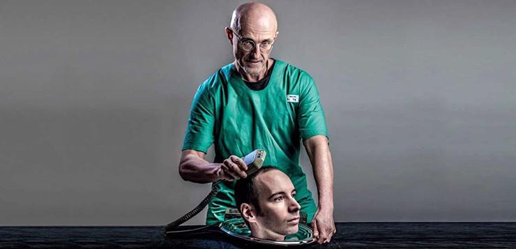 transplante-cabeça