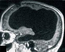 angiografia-cerebral
