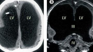 lados-cérebro-raiox