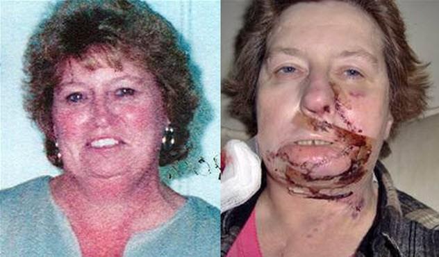 queimadura cirurgia