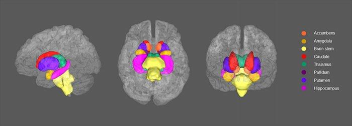cerebrodepressão