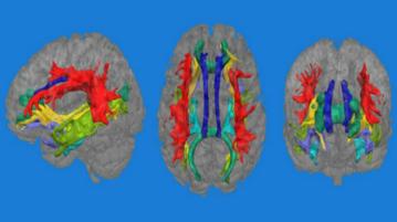 cerebrodepressãocapa