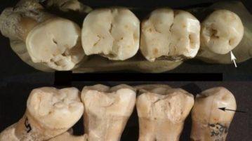 neanderthais odontologia