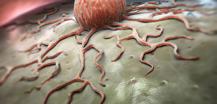 an câncer célula cancerígena