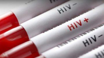 AN vacina contra o HIV