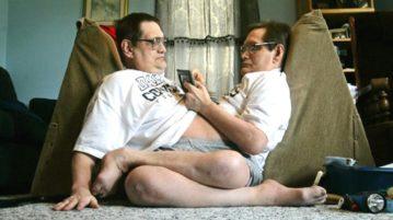 gêmeos siameses galyon