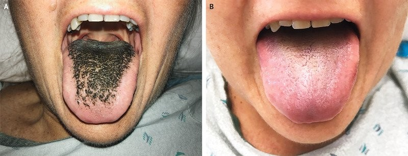 língua peluda-1