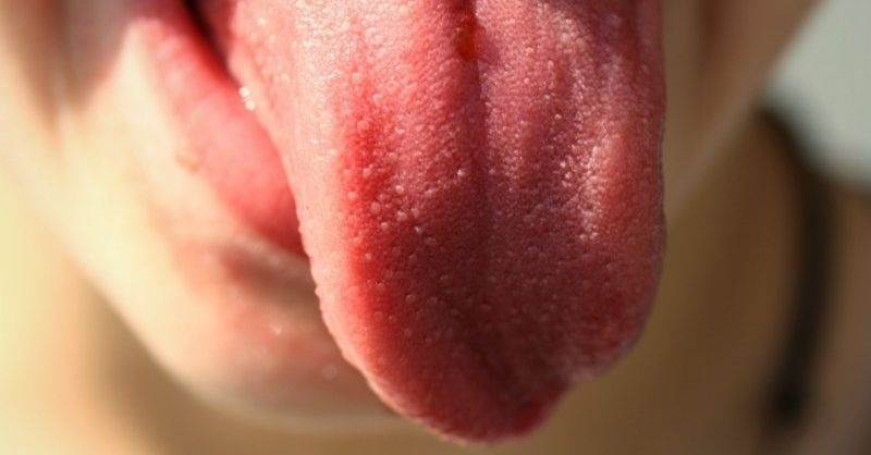 língua peluda-capa