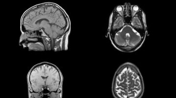 cérebro-espaço capa