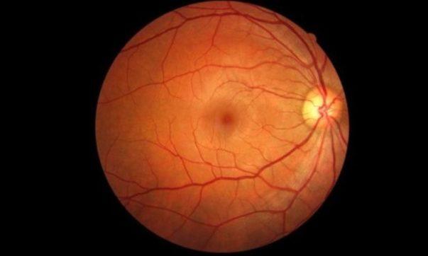 retina-capa