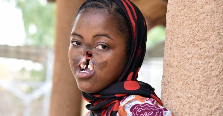 Noma: a assustadora doença que desfigura os mais pobres do mundo