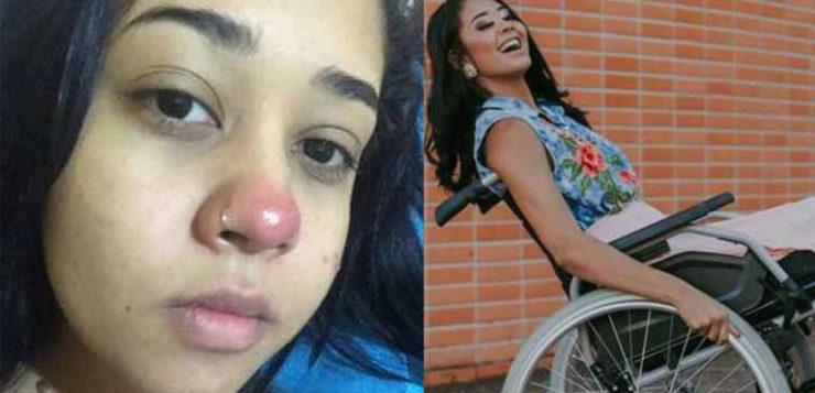 A história da jovem que ficou paraplégica por causa de um piercing