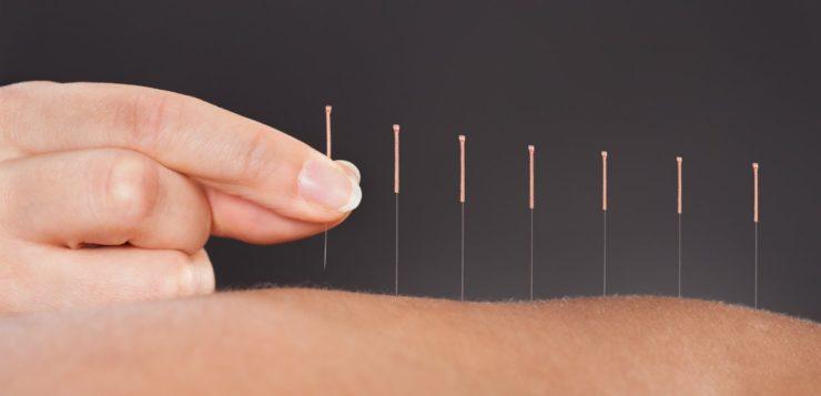 acupuntura funciona