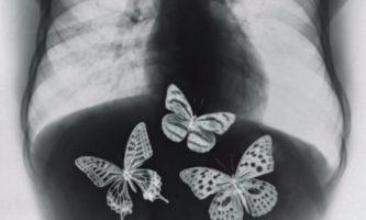 borboletas no estomago