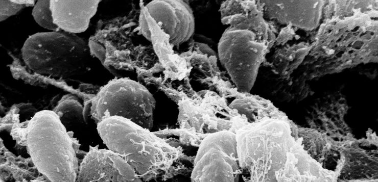 China eleva alerta sanitário após caso de peste bubônica no país