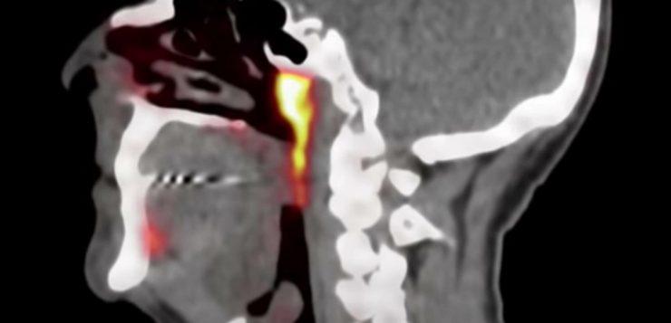 glandulas salivares corpo humano