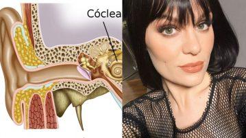 Doença de Ménière-Jessie J capa