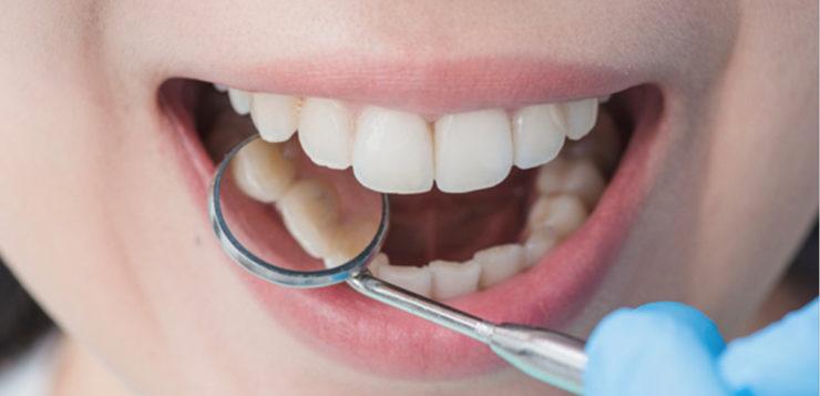 dente siso dentes sisos