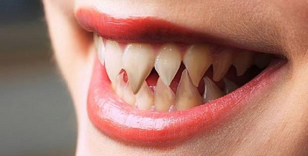 dentes-pontiagudos